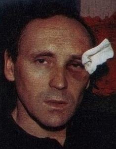 Posledice napada na Šurbekovom licu