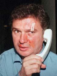 Ljubiša Tumbaković, trener Partizana, napadnut je od navijača Zvezde prilikom pokušaja izlaska sa terena